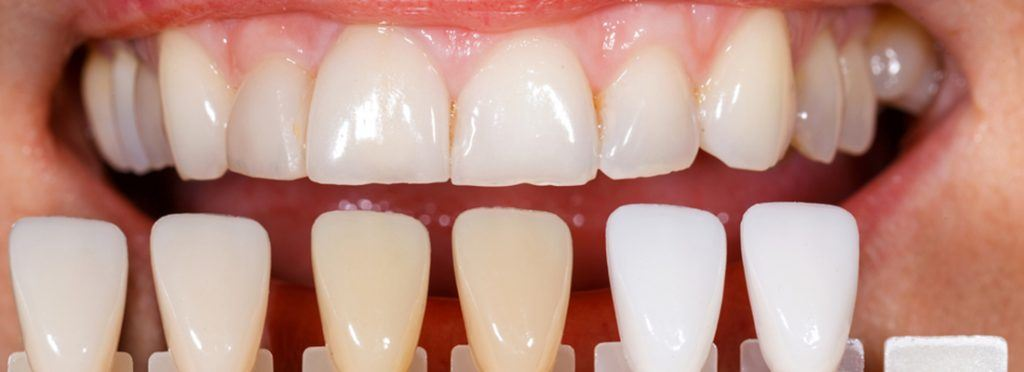 Why Porcelain Veneers are called Instant Orthodontics