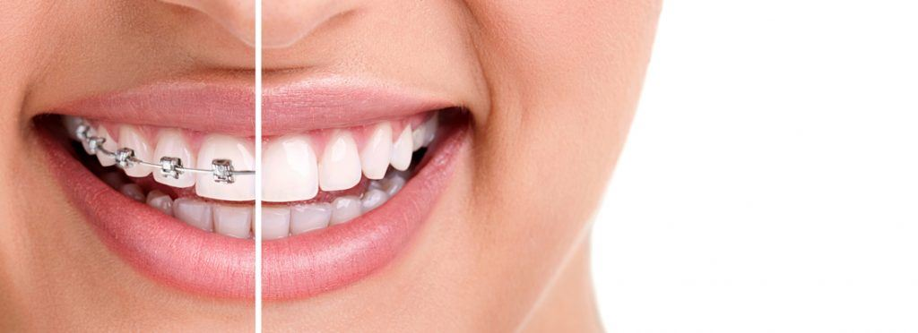 The reasons teeth shift