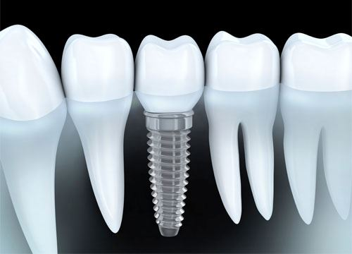 The ultimate guide to dental implants