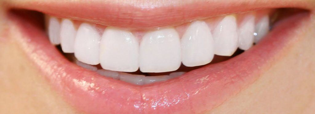 Are Porcelain Veneers right for you
