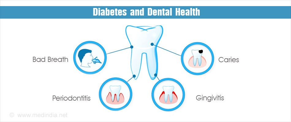 Periodontal Disease And Diabetes – What You Need To Know