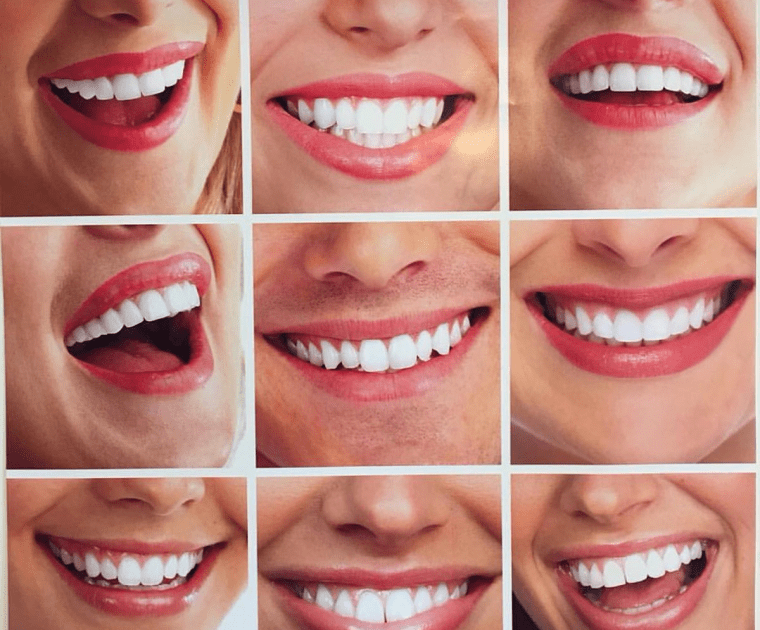 A great smile means having perfect set of teeth.