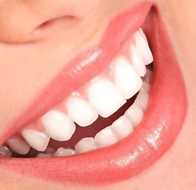 Avail the best medical center in Dubai that offers teeth whitening.