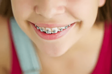 clean your teeth while wearing braces