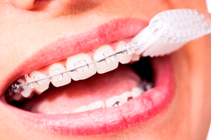 6 Tips To Take Care Of Your Teeth With Braces