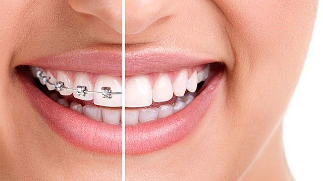 Dental Braces: What Are Benefits of Getting One?