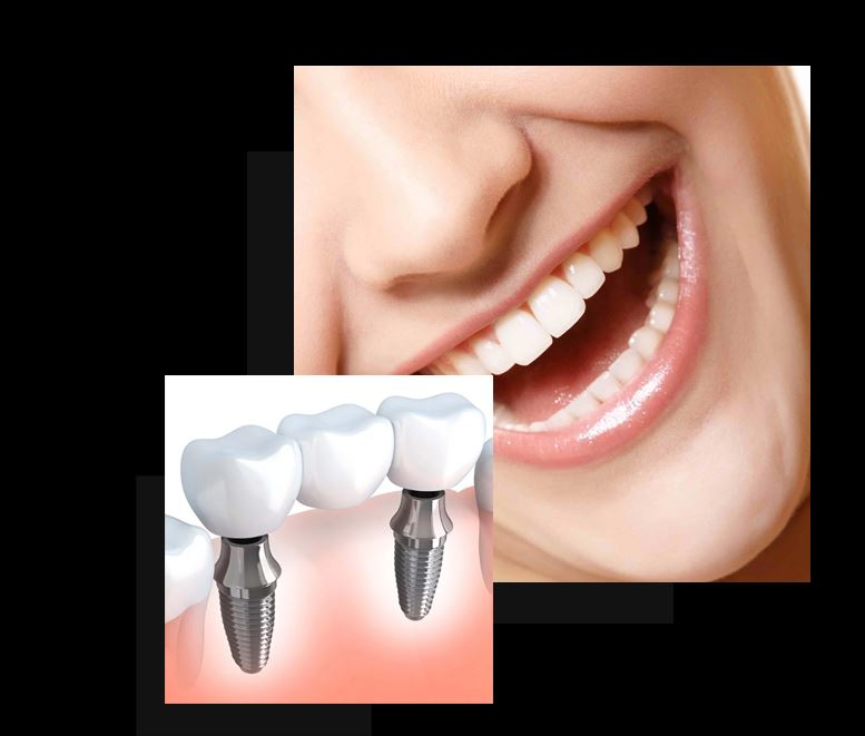 The Magic of Dental Implants and How It Can Transform Your Smile