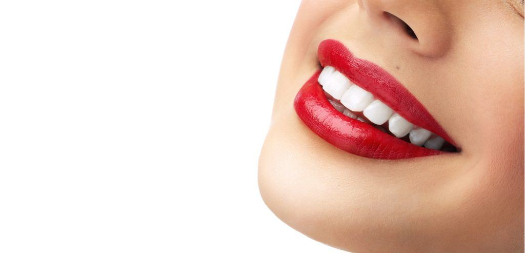 Is Teeth Whitening Right For You? : 5 Things You Should Know