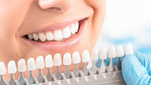 Teeth Whitening In Dubai - American Dental Clinic