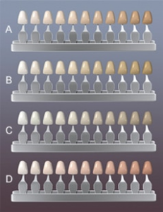 Teeth Color Chart - American Dental Clinic