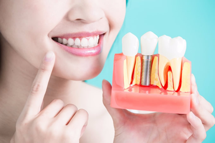 Cosmetic Dentist in Dubai