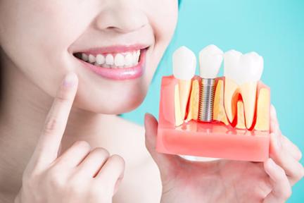 Cosmetic Dentist in Dubai