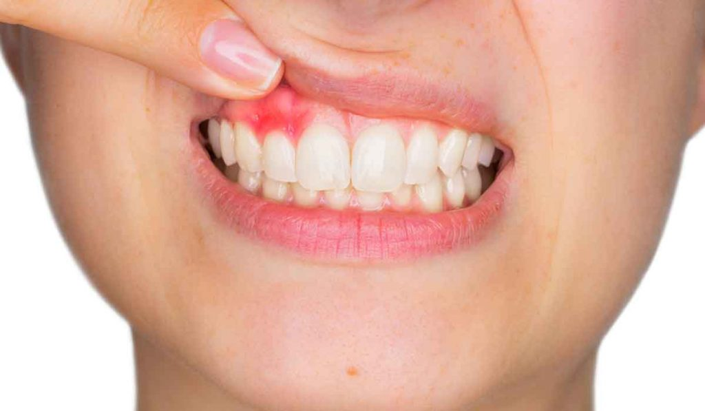 Gum Disease: The Dangers And Implications