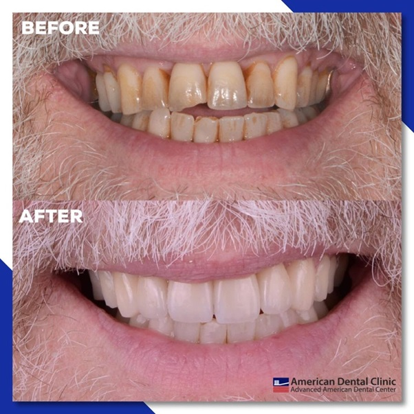 How Cosmetic Dentistry Works As An Anti-Ageing Treatment