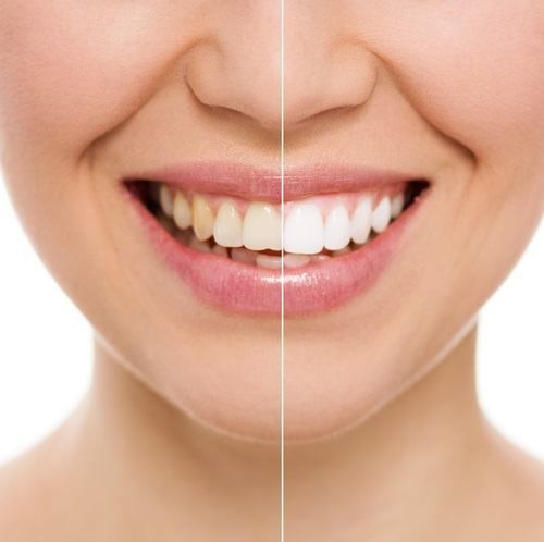 Things You Need To Know Before, During And After Teeth Whitening