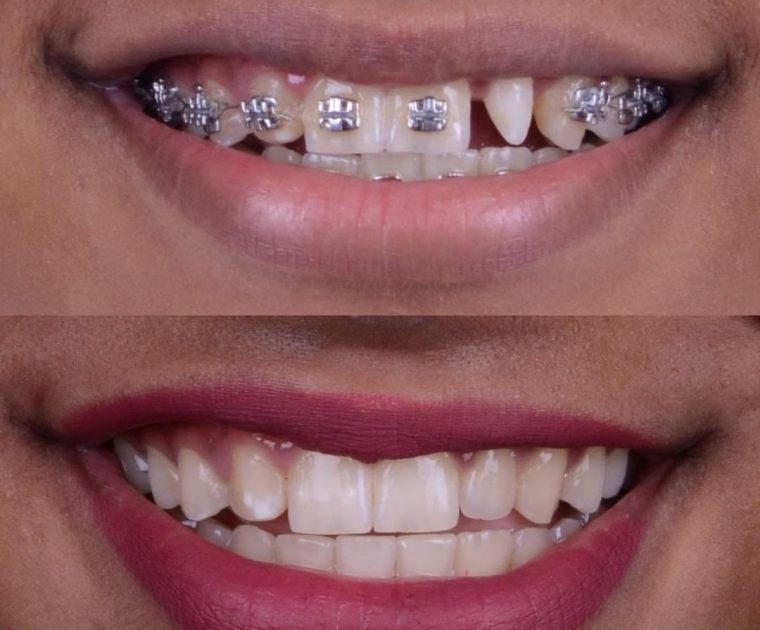 dental braces Dubai
