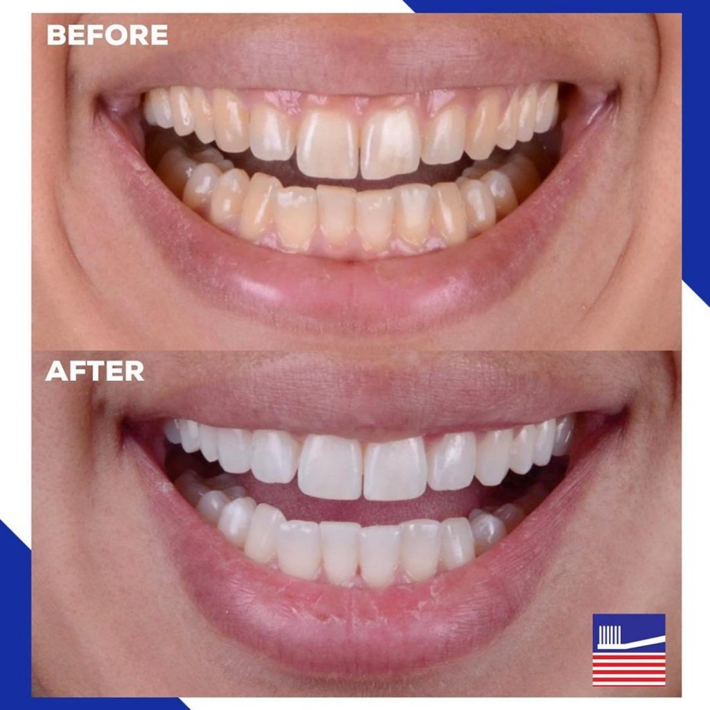 Things You Should Consider Before Getting Your Teeth Whitened