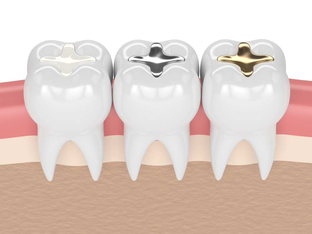 What Do Dental Fillings Add To Your Overall Oral Health?