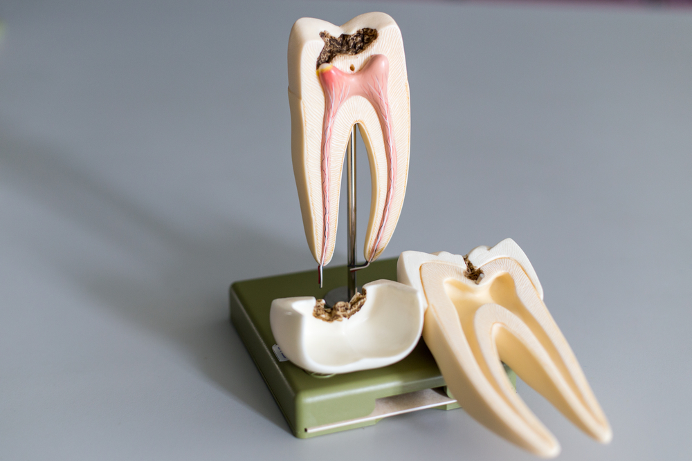 Root Canal: An Overview Of The Causes, Symptoms, And The Treatment