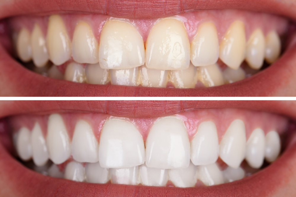 Get To Know The Different Types Of Treatments And Techniques Used For Teeth Whitening