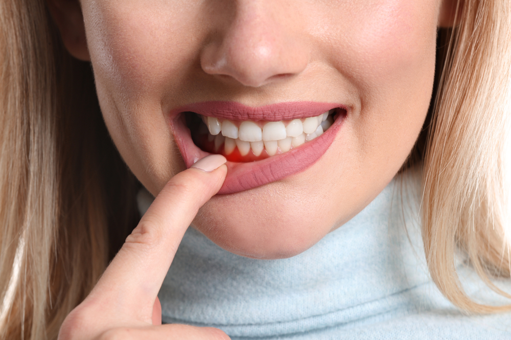 What Are The 7 Main Factors That Can Cause Periodontal Disease?