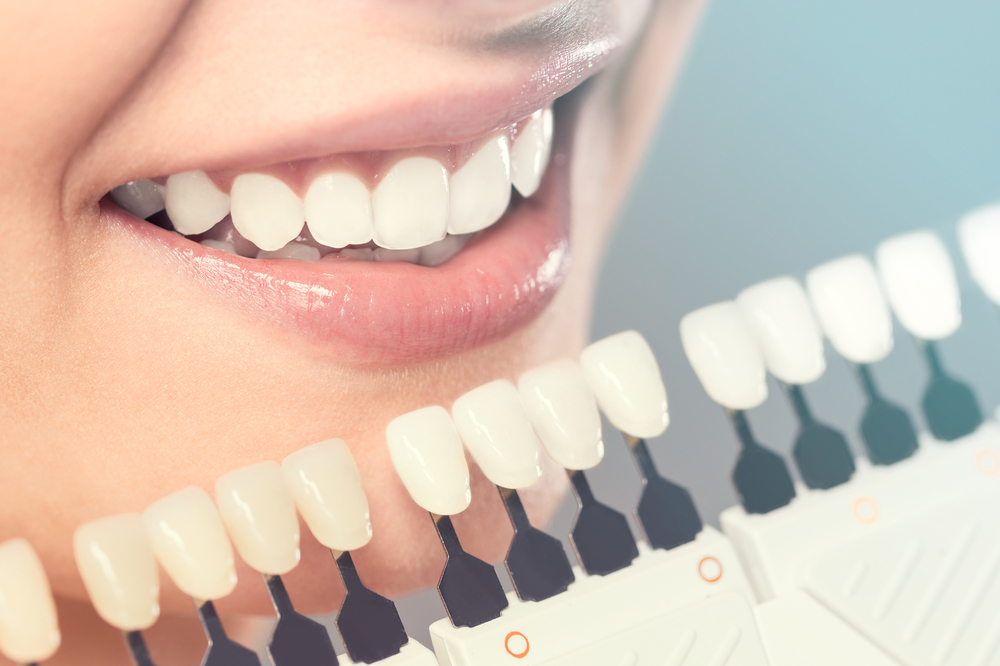 Cosmetic Dentistry: A Look Into How It Can Help You Maintain Your Oral Health