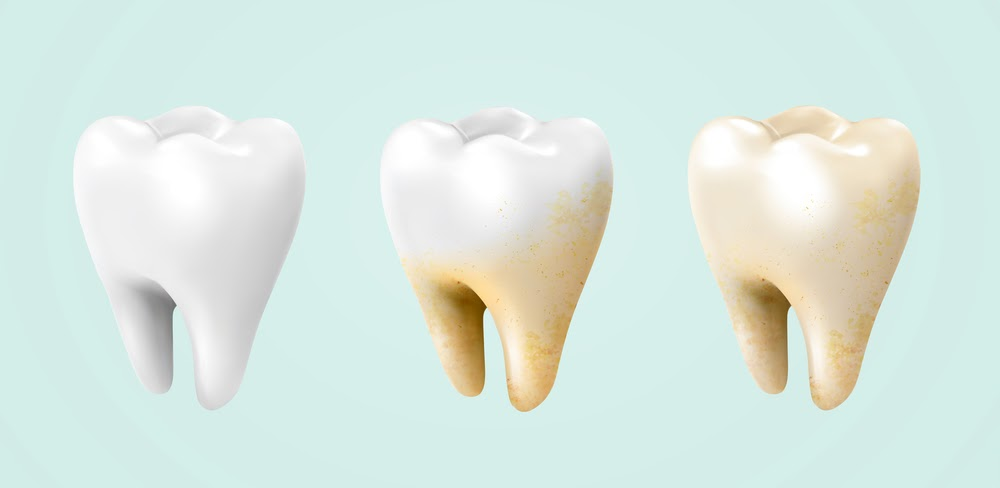 Discover 5 Leading Factors That Lead To Accumulated Stains On Your Teeth