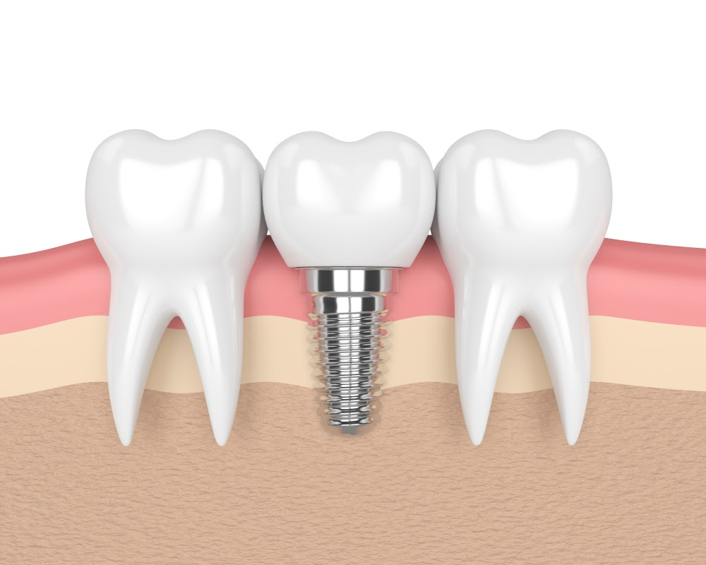 Dental Implants: How Can Dentists Determine The Best Treatment For You?