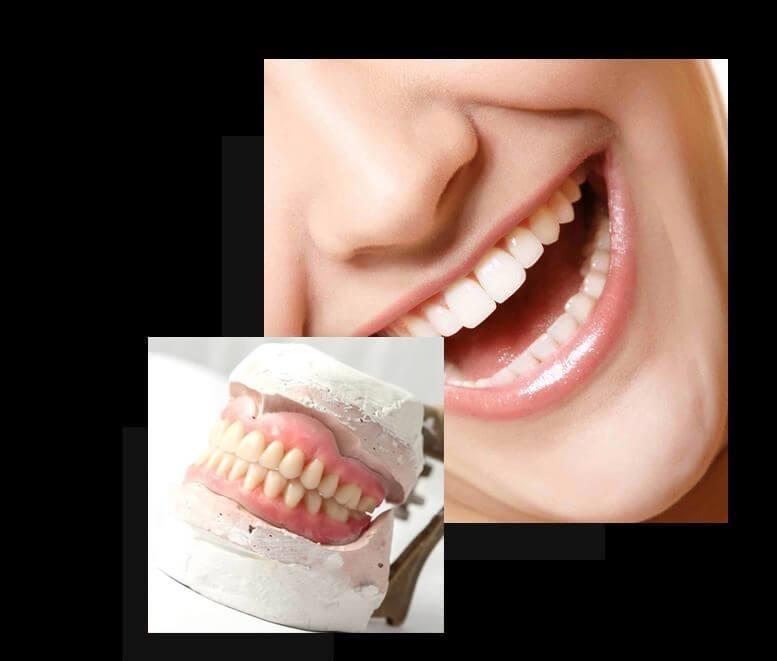 Dentures: Gain Confidence In Your Smile Once More