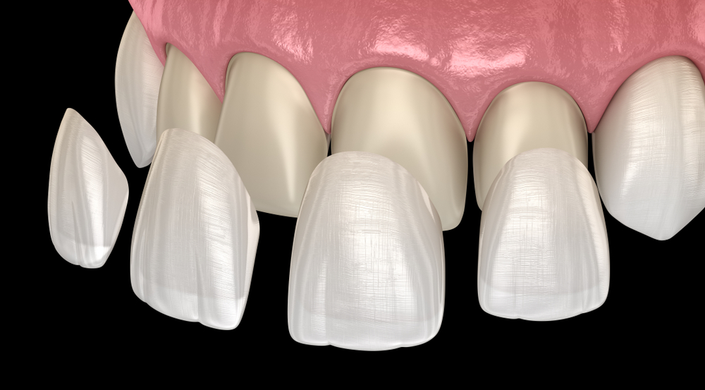 Veneer Placement: Post Treatment Instructions and Self-Care Tips