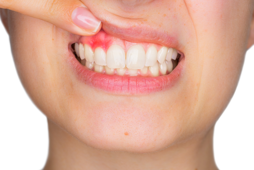 A Brief Guide To Periodontal Disease │ American Dental Clinic