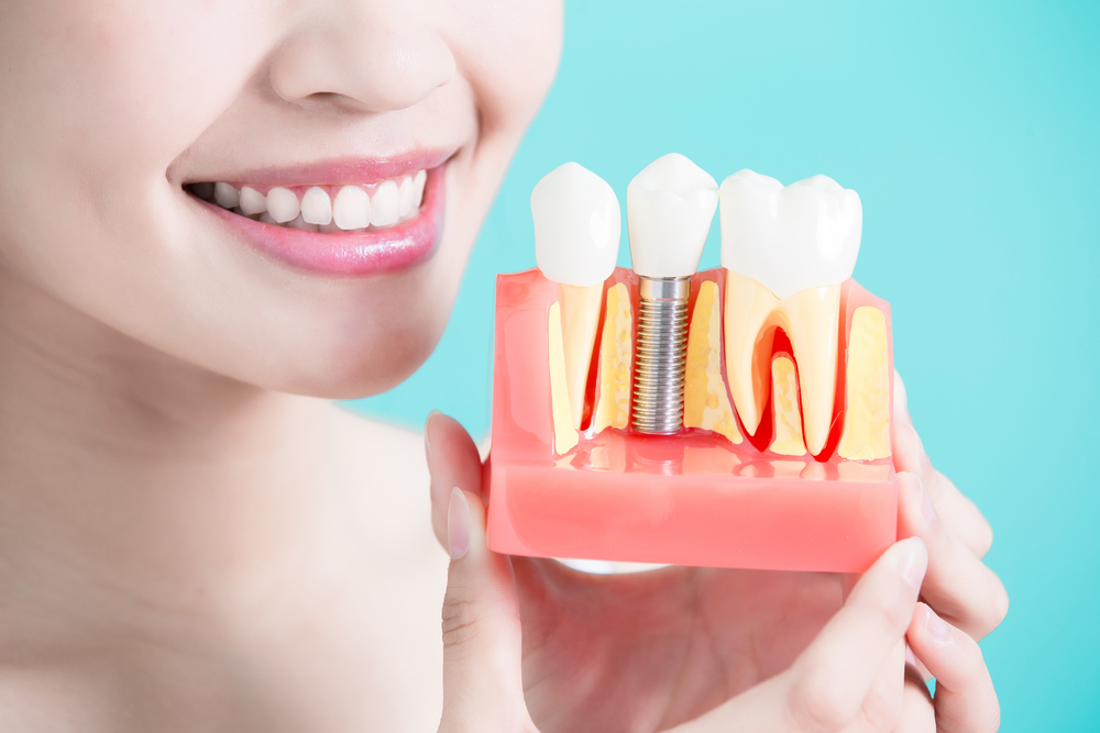 Dental Implants: How To Choose The Right One For You